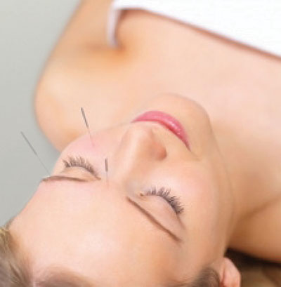 Woman Undergoing Facial Acupuncture Image