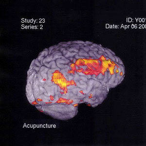 Acupuncture Brain Scan Image